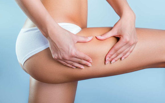 Which aesthetic treatments are the most popular for treating cellulite?