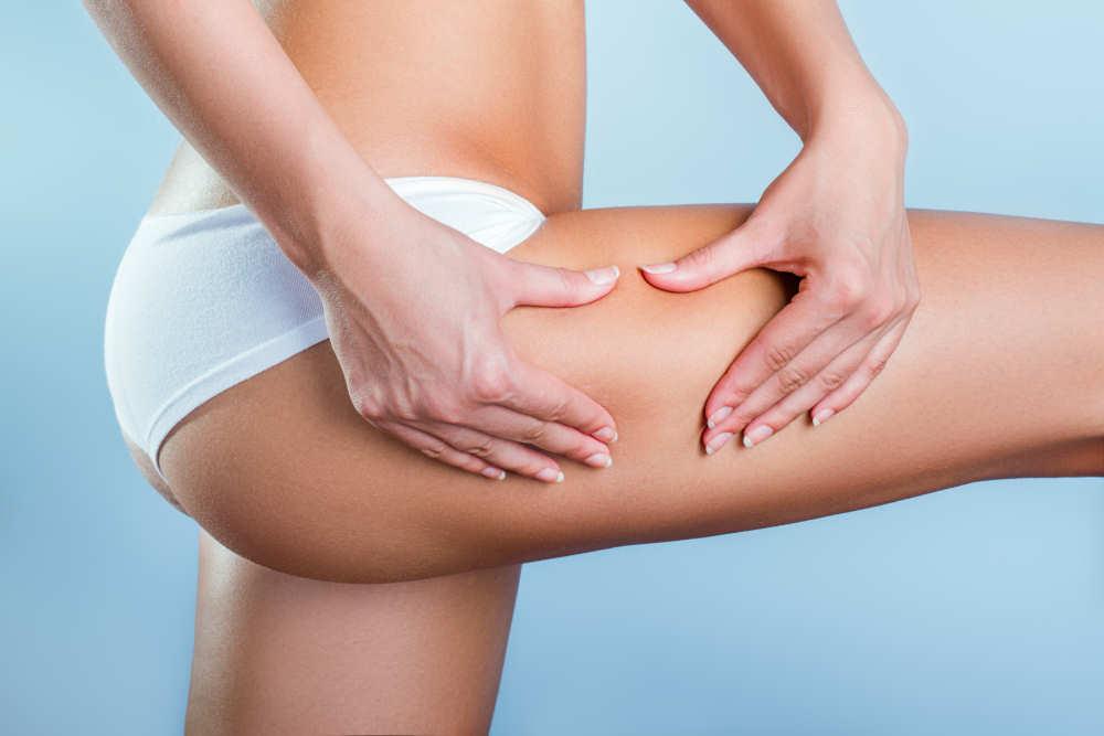 Cellulite Treatment in Melbourne
