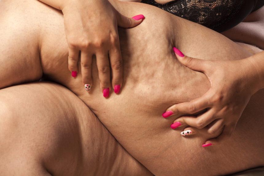 Cellulite treatments for fibrous septae