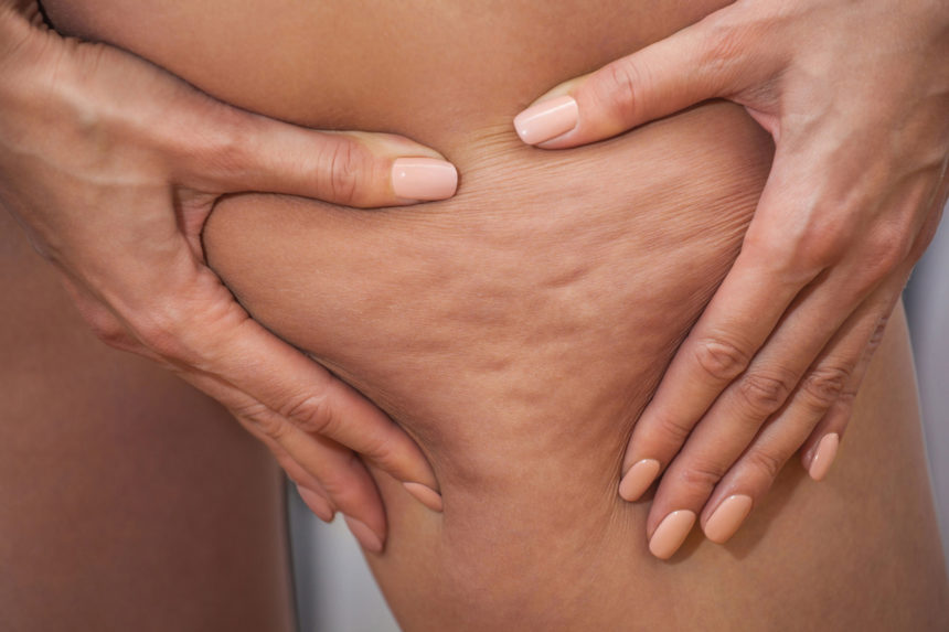 Cellulite: Buttocks, thighs and localised fatty deposits