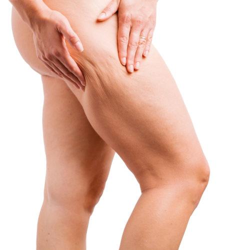 Fibrous cellulite