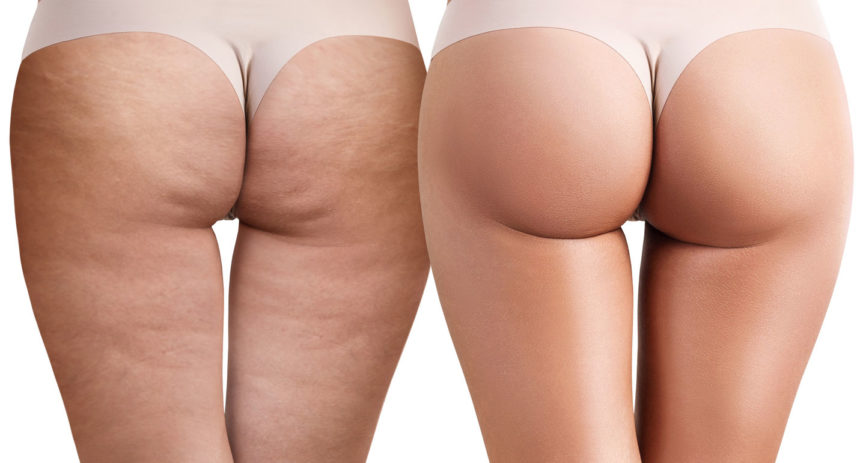 Cellulite: the right combination for combatting it