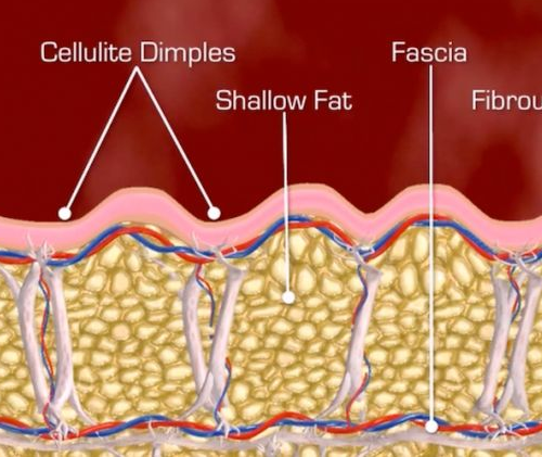 Fibrous septae and cellulite